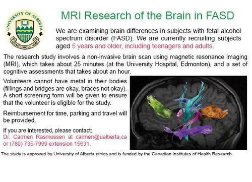 MRI-Research-of-Brain-UofA