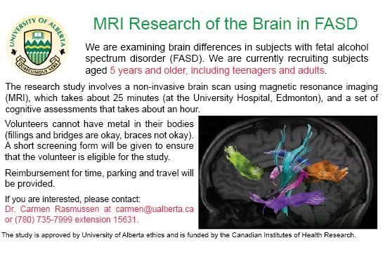 MRI-Research-of-Brain-UofA